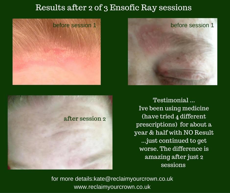 testimonial Ensofic Ray